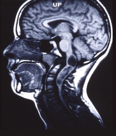 Intramedullaeres-Astrocytom