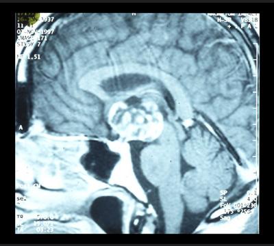Pädiatrische Neurochirurgie: Craniopharyngeom