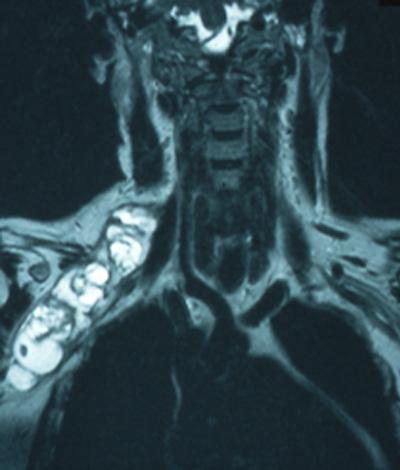 Periphere-Nervenchirurgie: Plexus Tumor