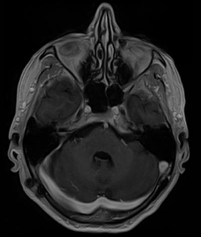 Akustikusneurinom Schädelbasis (MRT) nach OP