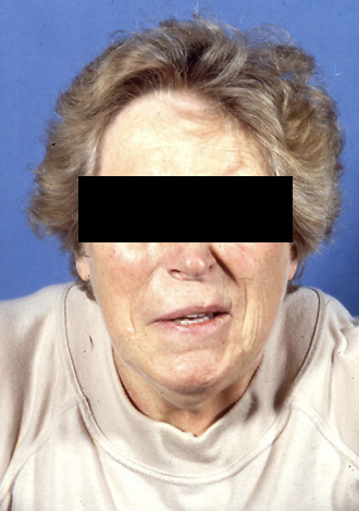 Neurovaskuläre Kompressionssyndrome Facialis-Spasmus